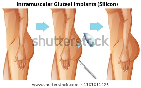 Intramuscular Gluteal Implants on White Background Stock photo © bluering