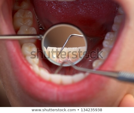 Tooth Cavity Close Up Stock photo © Lightsource