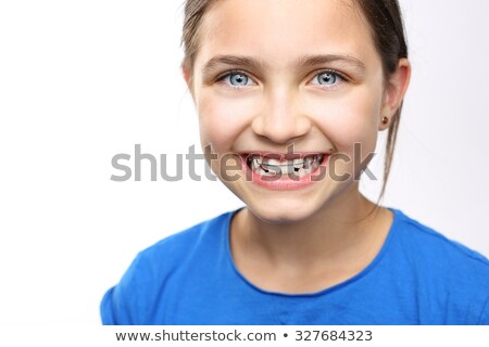 Kinderen tanden bretels kind Stockfoto © Mikko