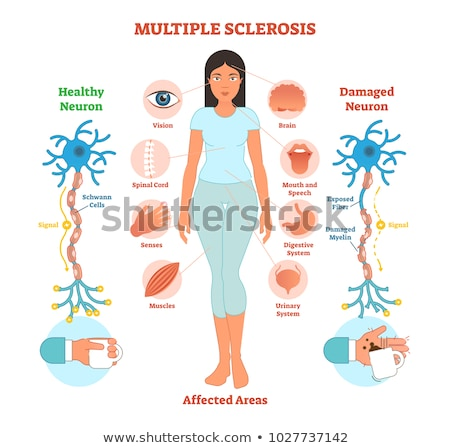 Human Anatomy of Multiple Sclerosis Stock photo © bluering