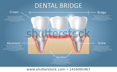a fixed partial denture stock photo © bluering