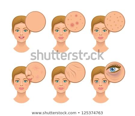 woman skin bruise stock photo © smithore