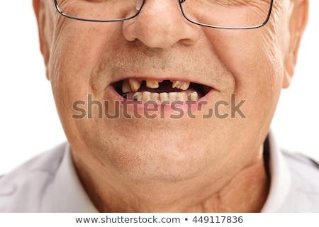 tandheelkundige · gebroken · tanden · kunstmatig · tand - stockfoto © d13