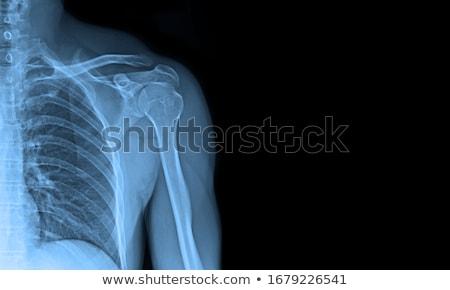 Xray костях фотография медицинской фильма здоровья Сток-фото © Hasenonkel