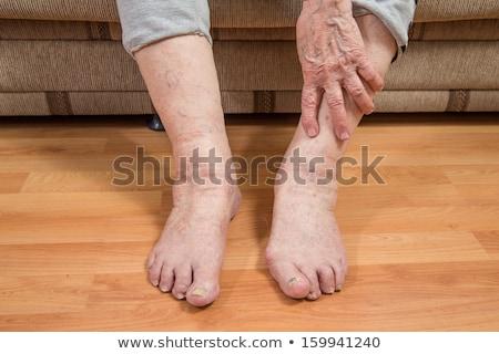 Donna dolente toenail primo piano mano Foto d'archivio © AndreyPopov