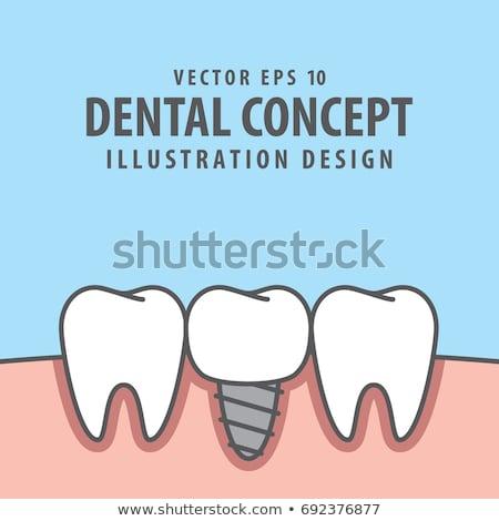 Artificial dente equipamentos odontológicos azul branco Foto stock © AndreyPopov