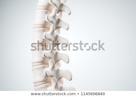diagnosis   hernia medical concept 3d illustration stock photo © tashatuvango