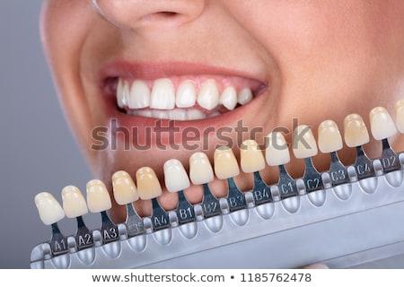 Dişler boşluk diş implant diş gölge Stok fotoğraf © AndreyPopov