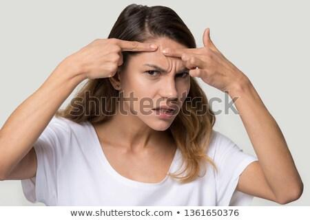 Acné adolescente mujer blanco Foto stock © dacasdo