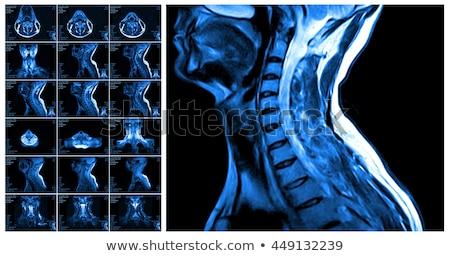 Stock fotó: Mágneses · gerincoszlop · mri · különböző · egészség · háttér