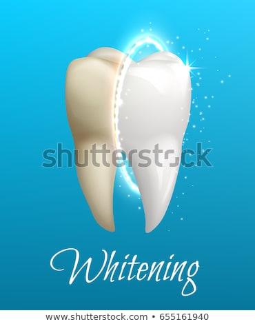 Gezonde witte tand ontwerp mooie lichtblauw Stockfoto © Tefi