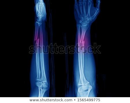 Breuk chirurgisch interventie medische wetenschap Stockfoto © alexonline