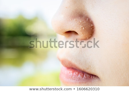 A Girl Havimg Psoriasis on Skin Stock photo © bluering