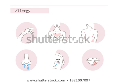 Red eyes woman with allergic reaction conjunctivitis irritated bloodshot eye inflammation. Closeup o Stock photo © Maridav