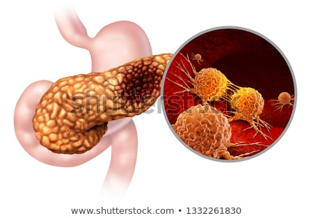Cancer Anatomy Concept Stock photo © Lightsource