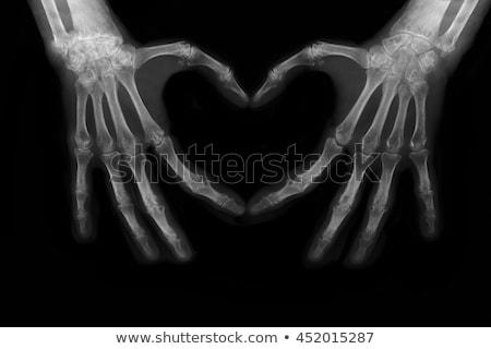 человека сердце Xray школы тело фитнес Сток-фото © digitalstorm