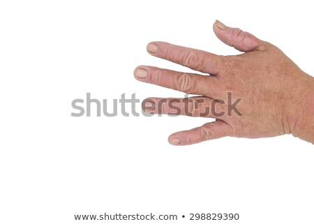 male palms with eczema isolated on white background stock photo © traza