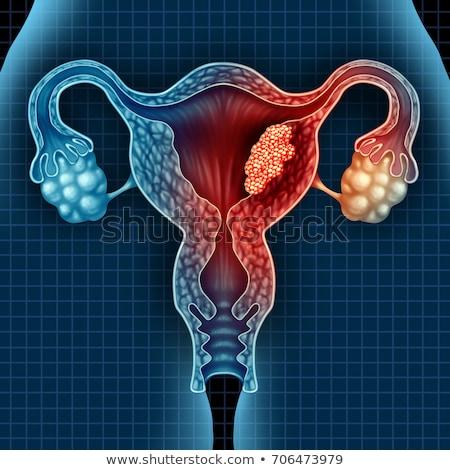 uterine cancer diagnosis medical concept stock photo © tashatuvango