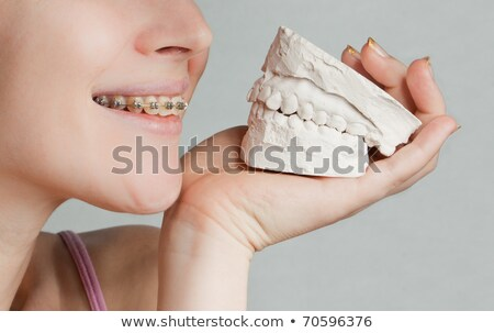 Smile with bracket & white plaster jaw model Stock photo © jagston