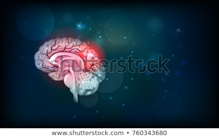 cerebrovascular insult medicine 3d illustration stock photo © tashatuvango