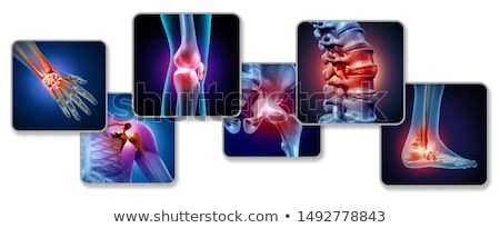 Gezamenlijk pijn medische afgedrukt diagnose Blauw Stockfoto © tashatuvango