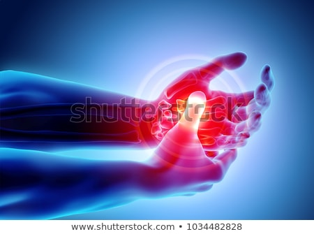 Arthritis. Medical Concept. Stock photo © tashatuvango