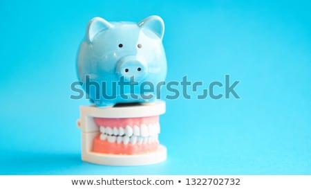 歯科 お金 歯科 コスト 歯 インプラント ストックフォト © AndreyPopov