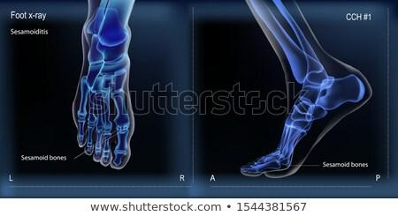 骨 X線 画像 人間 関節 整形外科の ストックフォト © pikepicture