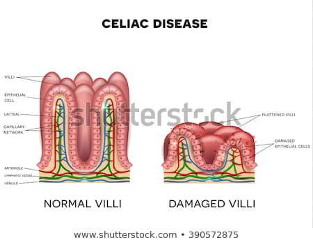 Celiac Disease Anatomy Stock photo © Lightsource