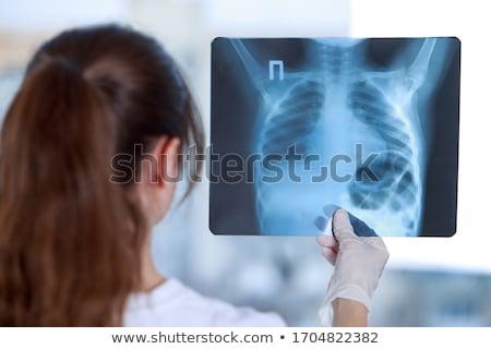 Orvos megvizsgál kar csontok röntgenkép orvosi Stock fotó © HASLOO