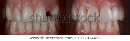 Fogászati fogak penész eszközök faliszekrény gyógyszer Stock fotó © fanfo