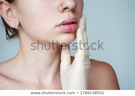 Woman with bruise on skin Stock photo © bluering