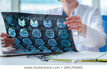 doctors looking at an mri scan at computer stock photo © andreypopov