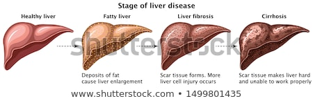 Stock photo: Cirrhosis of the Liver anatomy illustration