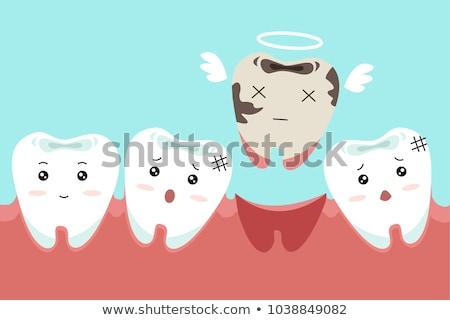 tandheelkundige · gebroken · tanden · kunstmatig · tand - stockfoto © lightsource