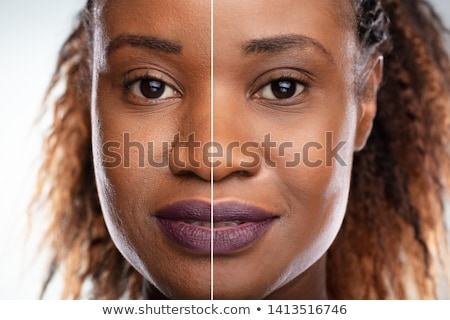 Before And After Woman Face Laser Microdermabrasion Stock photo © AndreyPopov