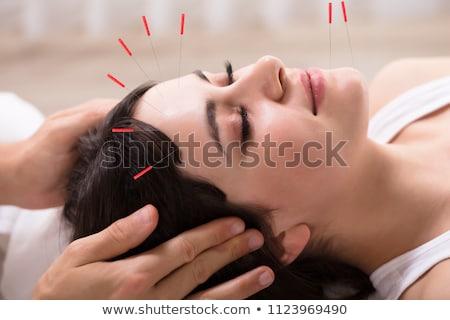 Zdjęcia stock: Kobieta · akupunktura · leczenie · spa · człowiek · masażu