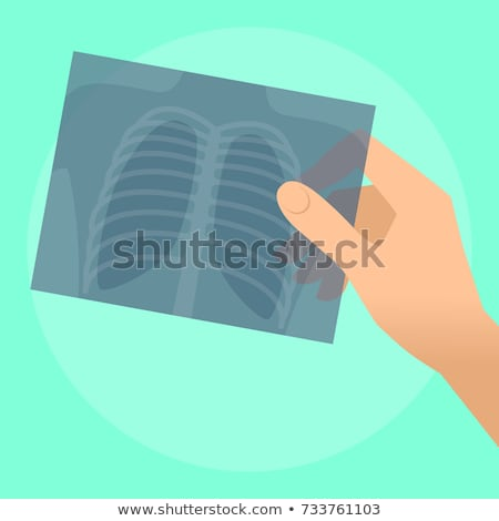 médico · raio · x · resultados · paciente · negócio - foto stock © photography33