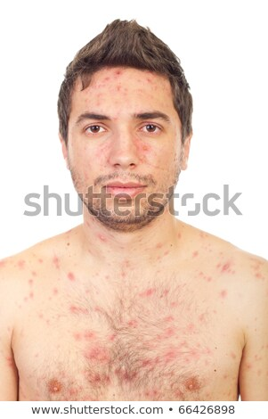 Stock photo: Close up of man face with chickenpox