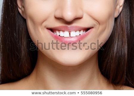 Genç kız diş boşluk kız çocuk portre Stok fotoğraf © IS2