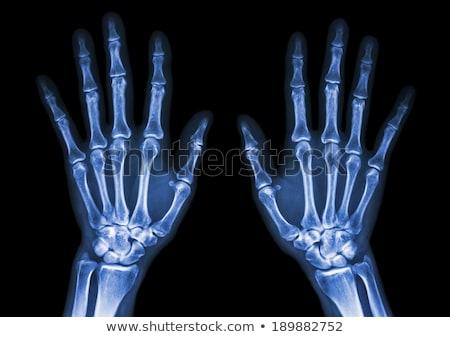 médecin · regarder · xray · santé · médicaux · homme - photo stock © klinker