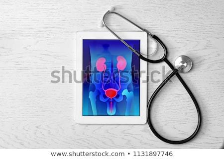 prostatitis on the display of medical tablet stock photo © tashatuvango