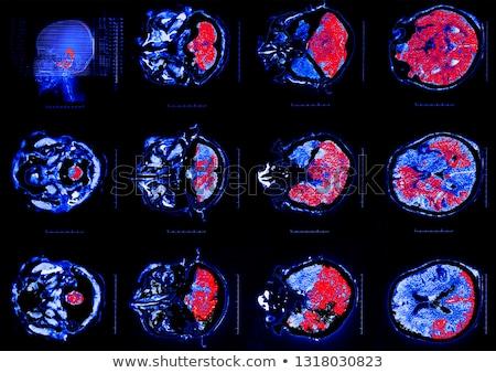 人間の脳 · 抽象的な · 治療 · 医療 · ボディ · 健康 - ストックフォト © tefi
