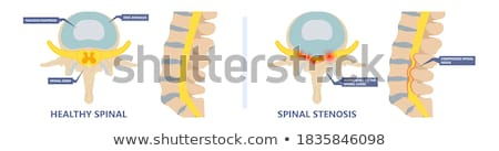 Spinal Stenosis Stock photo © Lightsource
