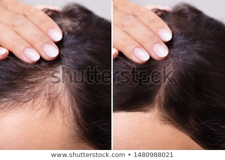 before and after of woman's skin Stock photo © lubavnel