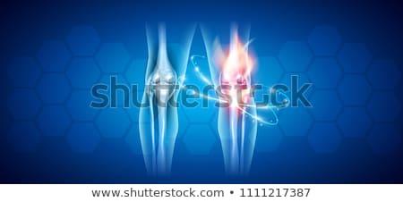 joelho · articulação · abstrato · tratamento · ilustração - foto stock © tefi