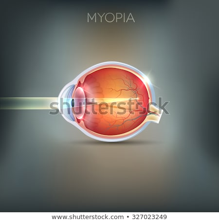 Human vision disorder, Myopia.  Myopia is being shortsighted.  Stock photo © Tefi
