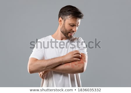 ITCH. Medical Concept. Stock photo © tashatuvango
