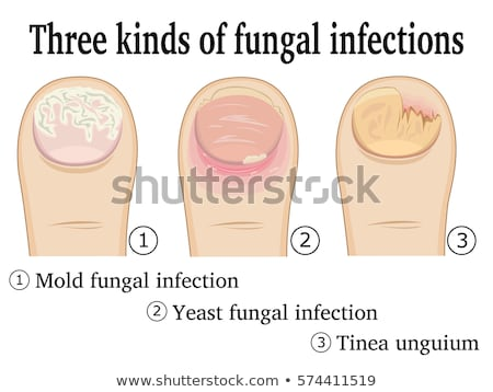 Toes with fungal infection Stock photo © Hofmeester
