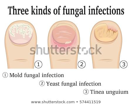 Infecção pé dedo do pé prego corpo Foto stock © Hofmeester
